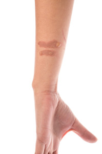 blister on forearm