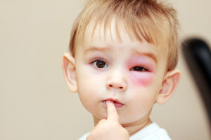 Child stung by a bee