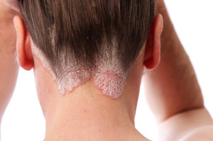 psoriasis on the hairline and on the scalp-close up