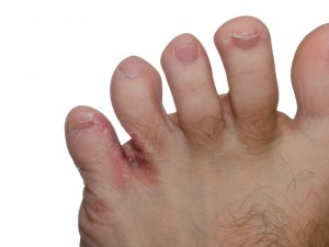 Close up of Athlete's foot between a man's toes