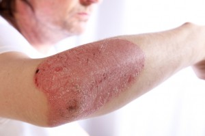 Person with plaque psoriasis of the arm